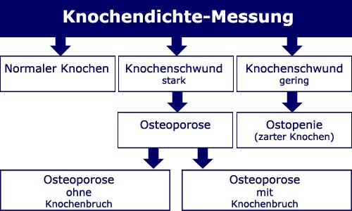 Osteoporose Sachsen - Messung der Knochendichte